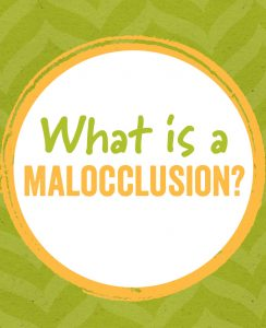 What is a Malocclusion